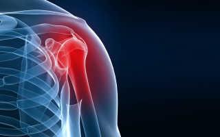 Деформирующий артроз плечевого сустава: симптомы и лечение