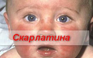 Диагностика и лечение скарлатины у вашего ребенка