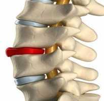 Боли в спине и пояснице во время беременности